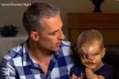 جراح أسترالي ينجح في ترميم ملامح طفل مغربي وُلد مشوه الوجه بتطوان
