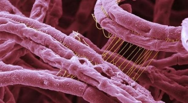 وزارة الصحة : 9 حالات إصابة بالجمرة الخبيثة بميدلت