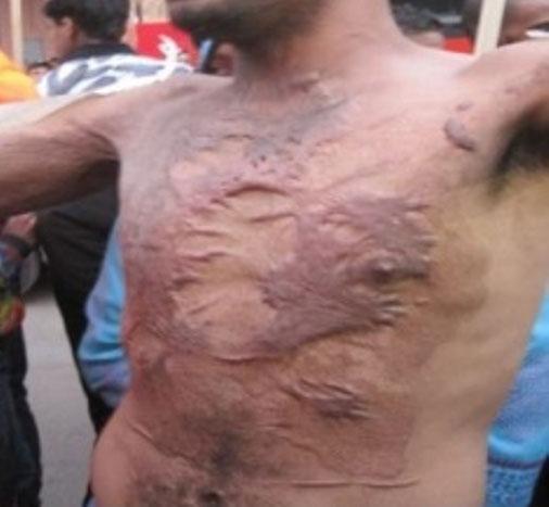 سجين سابق يحتج عاريا بخنيفرة لعرض إعاقته بعد تعرضه للحرق بالسجن المحلي