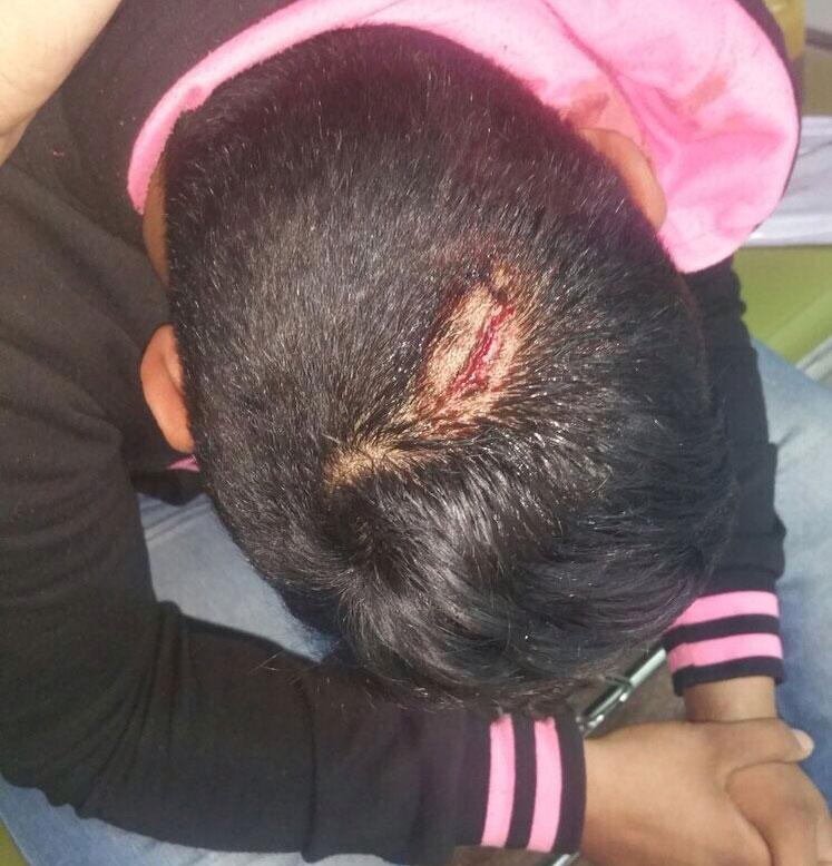 عصابة مسلحة تهاجم ثانوية بمراكش وتصيب تلاميذ بجروح خطيرة