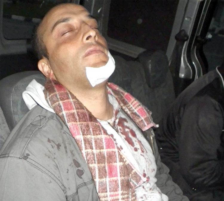إصابة مفتش ممتاز ورجل أمن أثناء إيقاف «الدوبيرمان» بالبيضاء