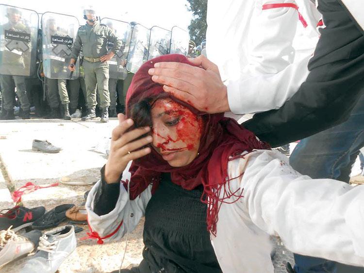 كسور وإصابات واعتقالات حصيلة التدخل الأمني ضد الأساتذة المتدربين بإنزكان