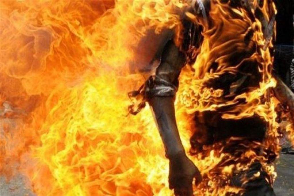 حروق من الدرجة الثانية بجسد شاب أضرم النار في جسده أمام مكتب نائب الوكيل بأكادير