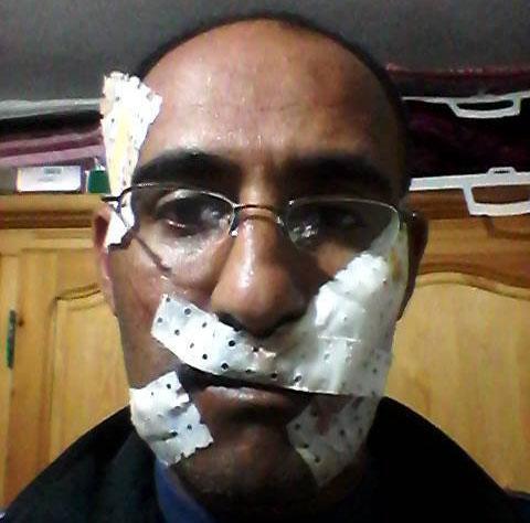 حامل بآسفي تلد في طاكسي ومجرم يشوه وجه سائق بـ50 «غرزة»