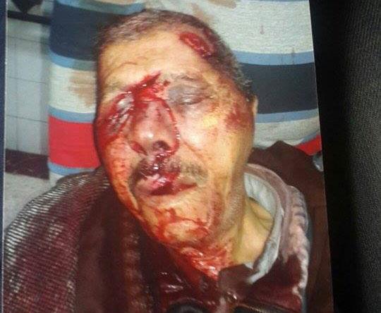 احتجاجات بسبب الوضع الأمني بمديونة بعد مقتل حارس للسيارات
