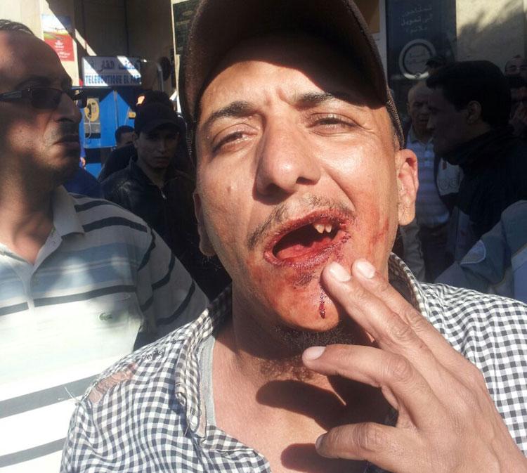 عنصر قوات مساعدة يهشم أسنان بائع متجول بإنزكان