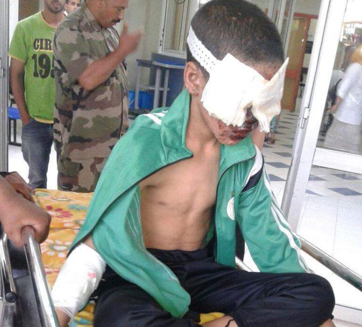قاصر مهدد بفقدان بصره بسبب إصابته ببارود بندقية «تبوريدة» بالرباط