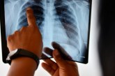 وزارة الصحة تكشف أرقاما صادمة عن انتشار داء السل