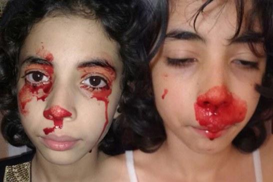 «الأخبار» تزور بيت الطفلة «آية» التي تبكي الدم ووالدتها تروي قصة الأسرة مع المرض الغريب