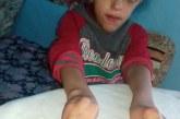 مأساة الطفل سعيد الذي ولد بأصابع ملتصقة وأمنيته الوحيدة هي الكتابة بالقلم