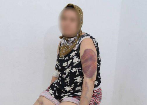 """صورة مشاهد تعذيب مروعة…مغربية تحكي قصة تعنيفها و اختطافها على يد """"خطيبها"""" – فيديو-"""
