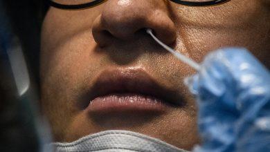 """صورة خبراء يدعون إلى الاستعاضة بعينة الدم في تحاليل كورونا عن """"مسحة الأنف"""""""
