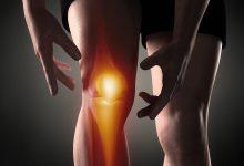 صورة استبدال مفصل ركبة عبر الطباعة الثلاثية عملية مضمونة